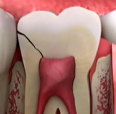 b2ap3_large_why-does-a-cracked-tooth-hurt-2 سندرم ترک خوردن دندان