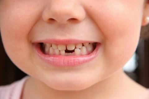 milk-teeth-e1459364274357