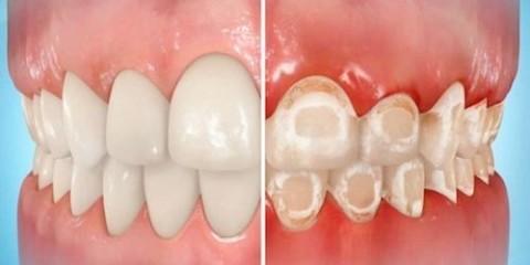 کلسیم زدایی دندانها و ایجاد لکه های سفید در درمان ارتودنسی
