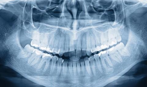 Dental-Xray-shutterstock_96672883-31indjst25pjfp39htlbsw