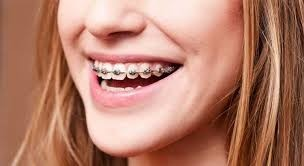 ortodonsi
