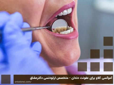 آموکسی کلاو برای عفونت دندان - متخصص ارتودنسی دکتر جمیلیان