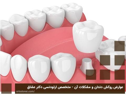 عوارض روکش دندان و مشکلات آن - متخصص ارتودنسی دکتر عشاق