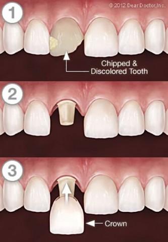 آیا مینای دندان امکان ترمیم دارد؟